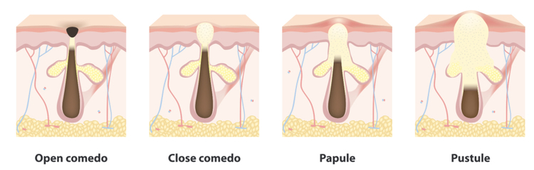Acne lesions types blackheads whiteheads papules pustules