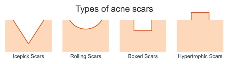 diiferent types of acne scars