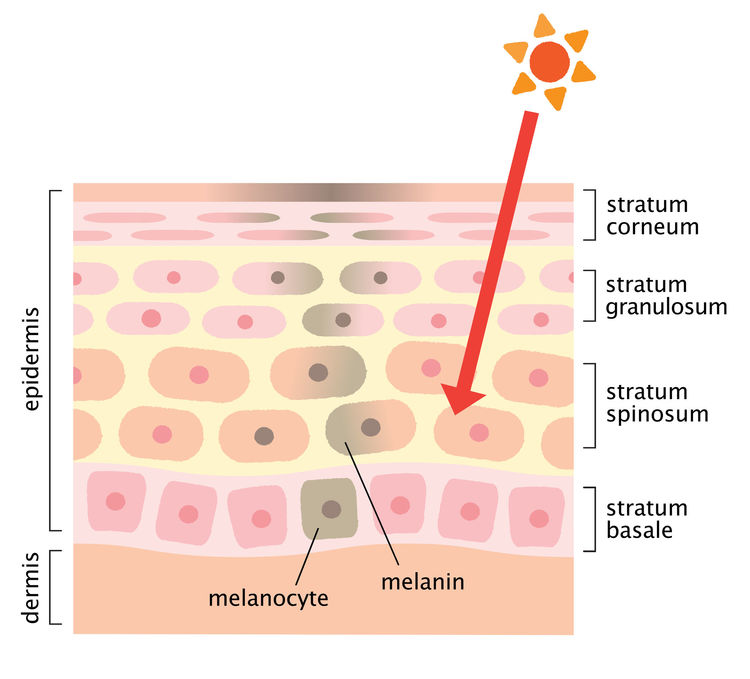mechanism of sun induced post acne dark scars