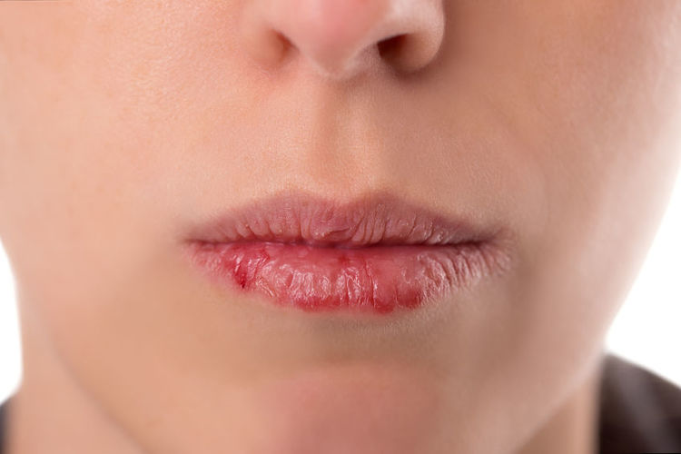 dryness of the lips during acne treatment with accutane