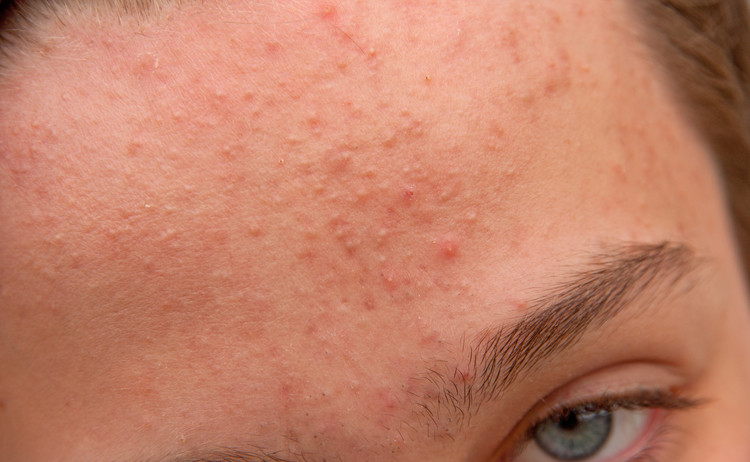 acne on the forehead with many closed comedones and whiteheads