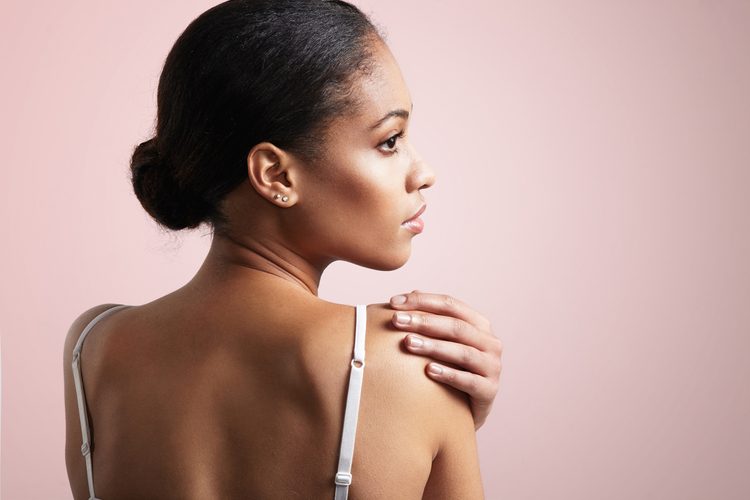 Woman treating back acne with natural products and MDacne