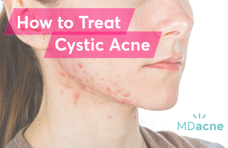 Woman with cystic acne and best treatments to cure cystic acne