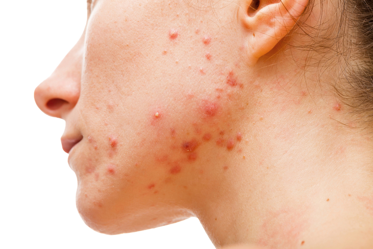 Woman with cystic hormonal acne on chin and jawline due to hormonal imbalance