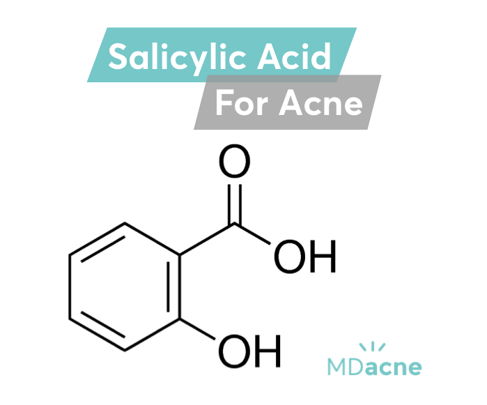 Salicylic acid is the second most important medical ingredient for the treatment of acne