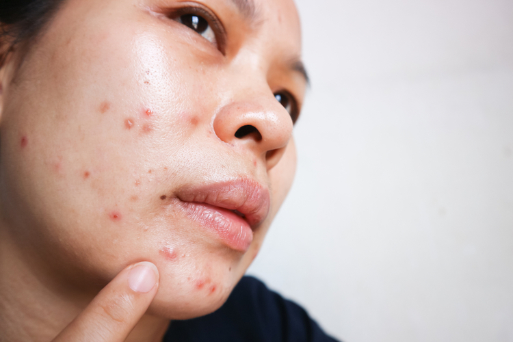Woman using clindamycin lotion to treat acne
