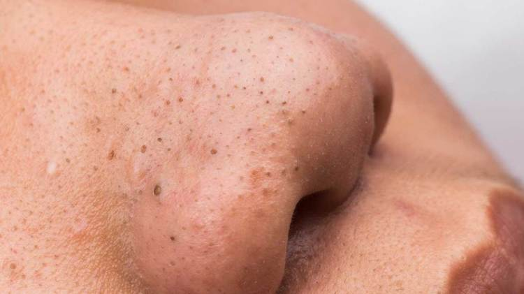 Laser resurfacing to help with acne and blackheads