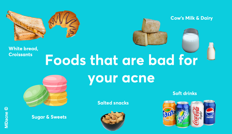 foods that are bad for acne