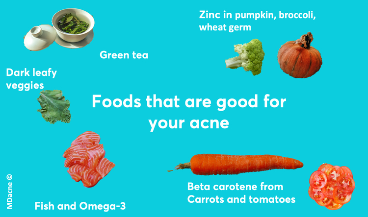 Foods that are good for acne