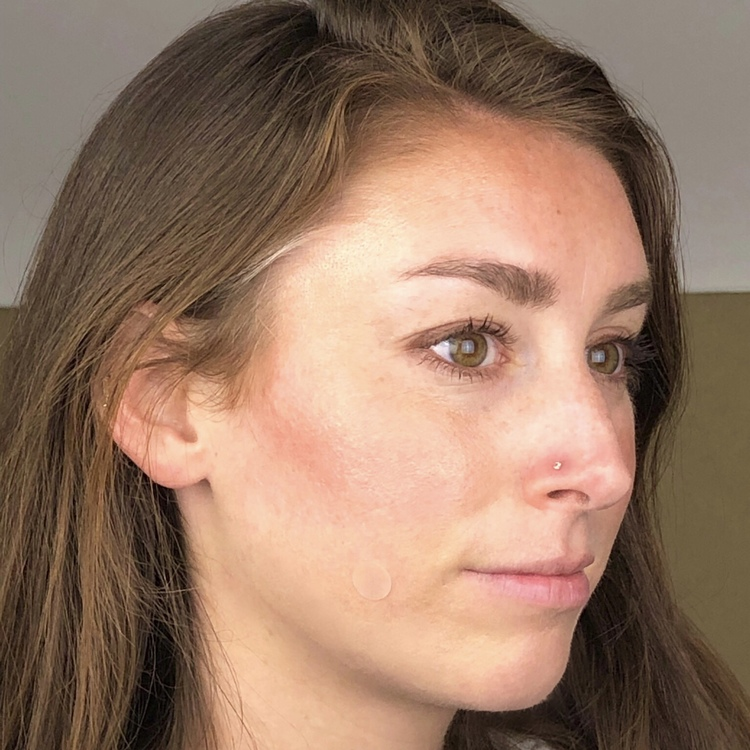 Woman wearing MDacne hydrocolloid pimple patch to heal a pimple overnight