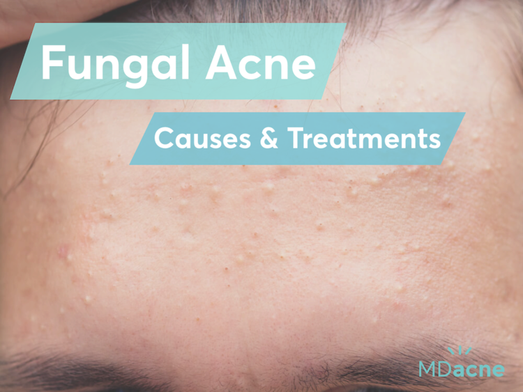 Fungal Acne Causes And Treatments Mdacne