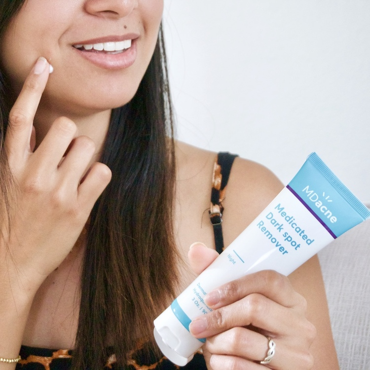 Woman applying MDacne Dark Spot Remover to fade post-acne marks