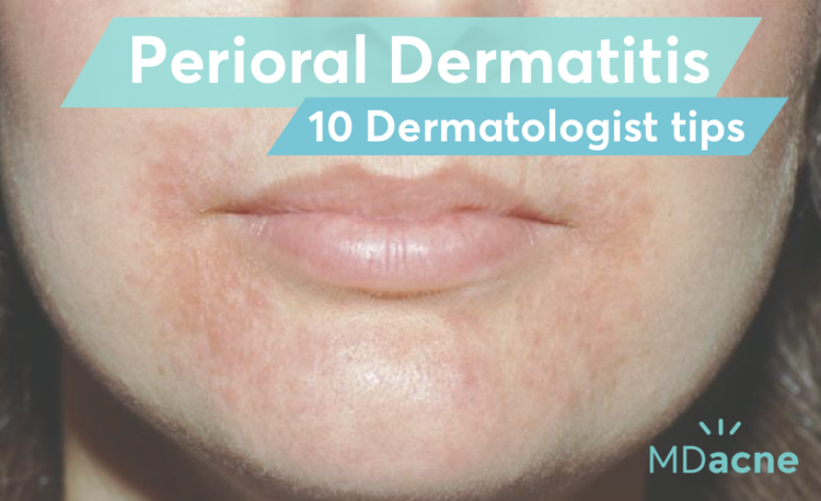 Dermatologist tips for treating perioral dermatitis