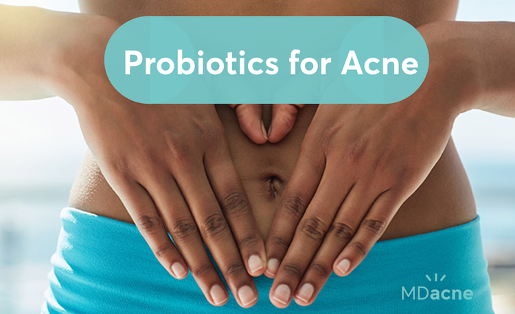 Should you take probiotics for acne? A dermatologist's advice