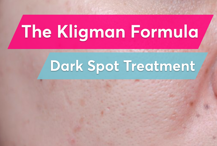 The Kligman Formula is the best prescription treatment for post-acne dark spots