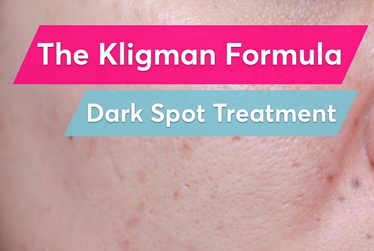 The Kligman Formula is the best prescription treatment for post-acne dark spots