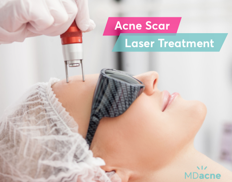 Acne scar laser treatment for post-acne scars