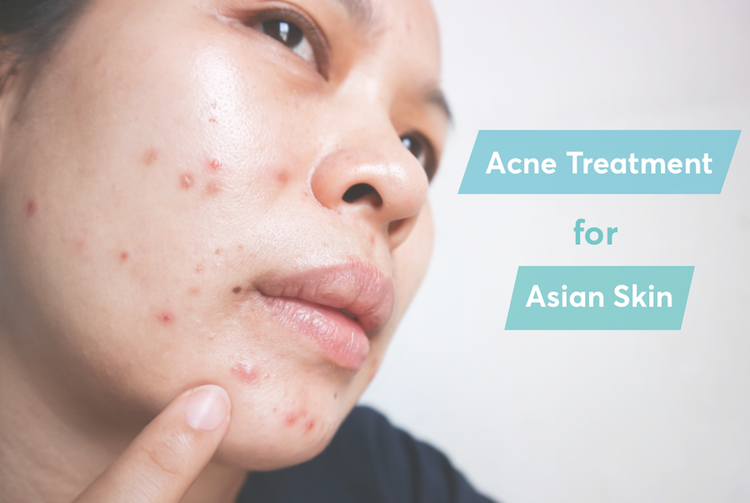 the best acne treatment for asian skin according to dermatologists
