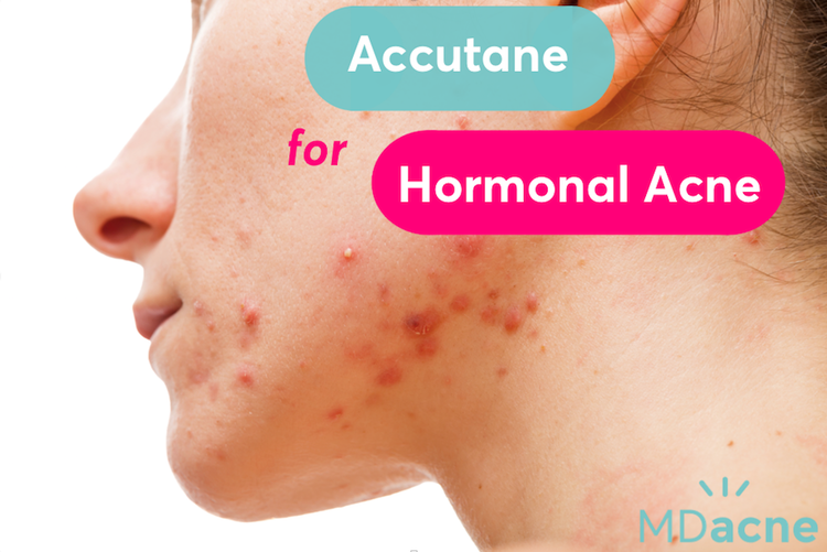 Does Accutane work for hormonal acne?