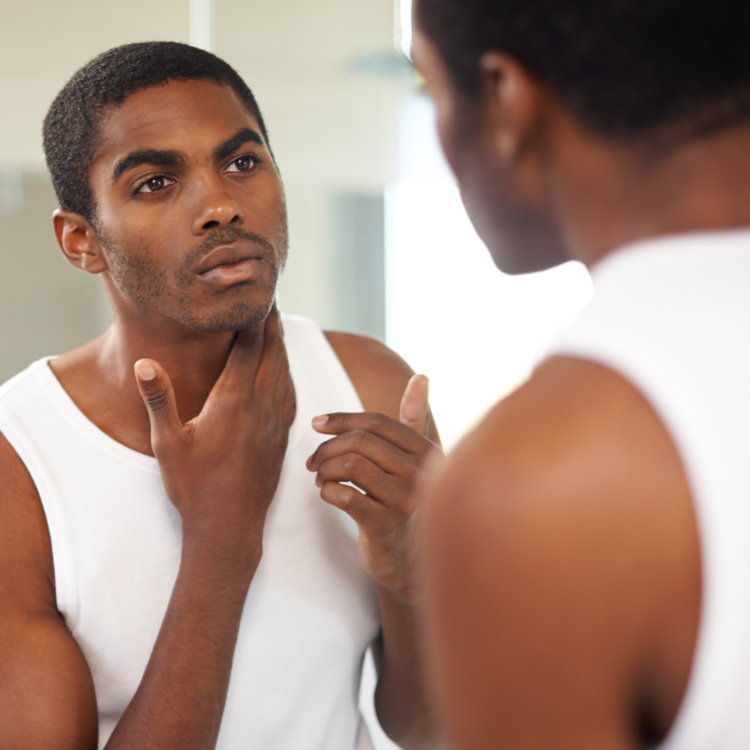 Man with black skin using MDacne Medicated Dark Spot Remover for hyperpigmentation