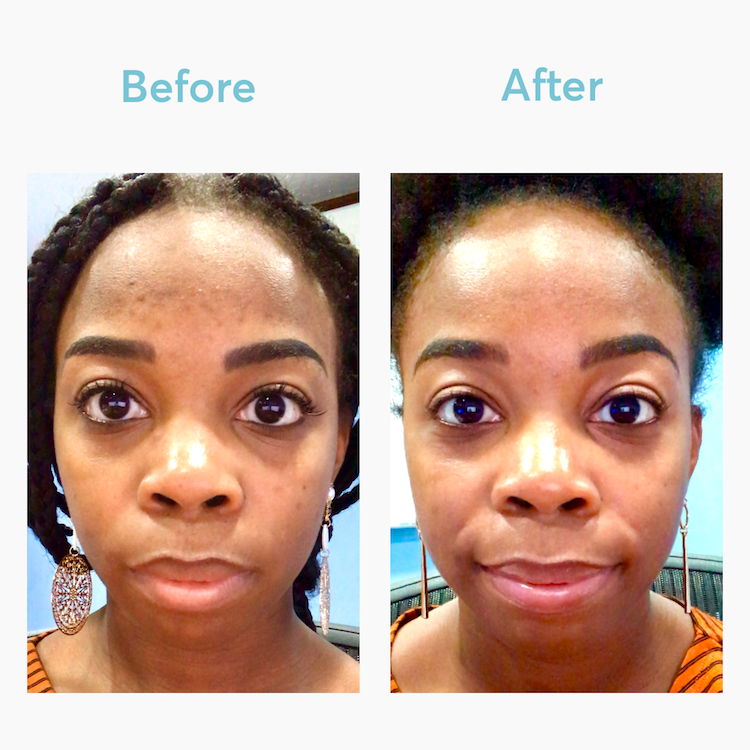 Results from MDacne Medicated Dark Spot Remover