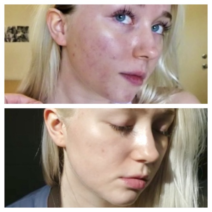 Woman treating post-acne dark spots and scars