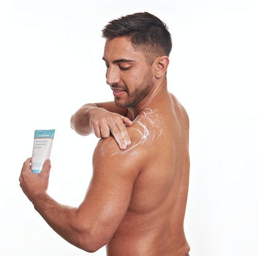 Man using MDacne body acne treatment cream