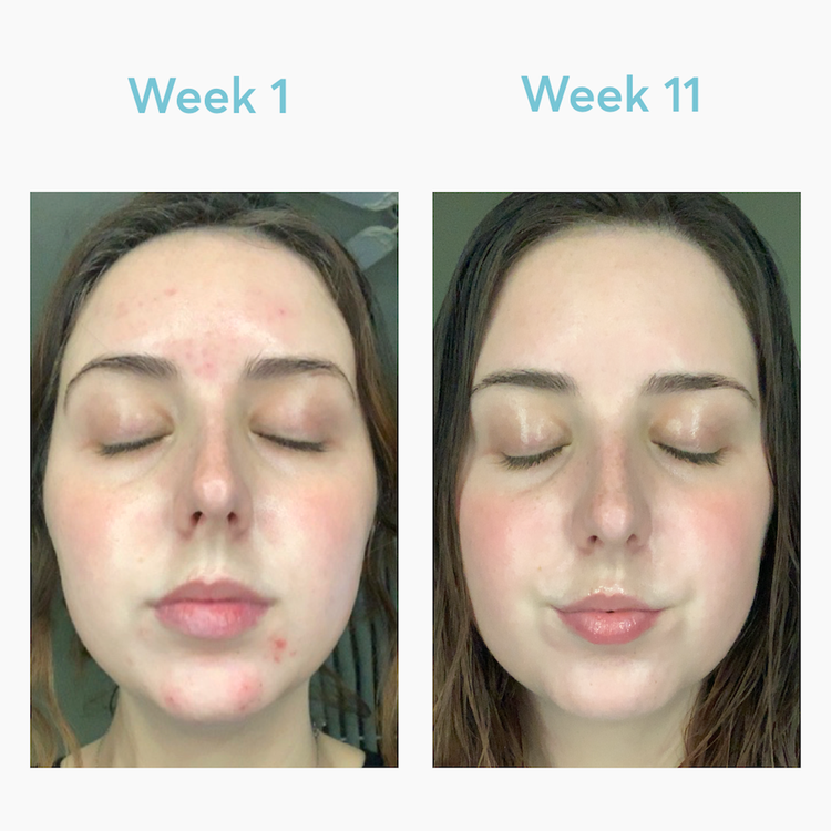 before and after of woman with acne and pimples on chin