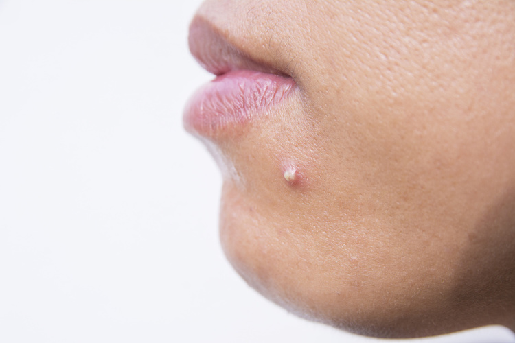What causes acne on the chin and how to treat it? Read in this blog