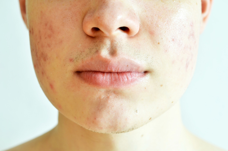 The best acne scar treatments according to dermatologists