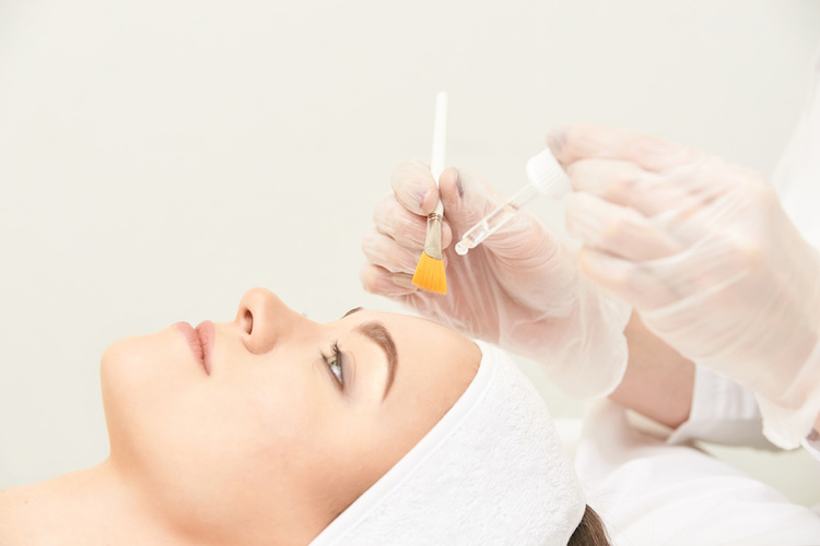 Dermatologist conducting chemical peel on woman with acne scars