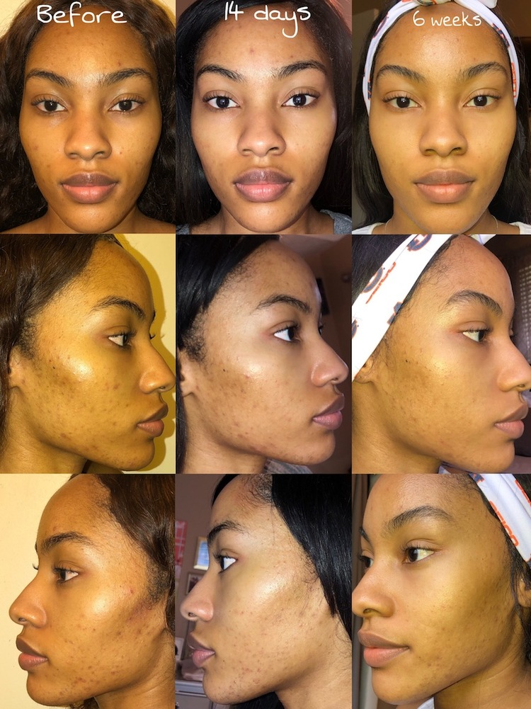 Results from using MDacne's Medicated Dark Spot Remover