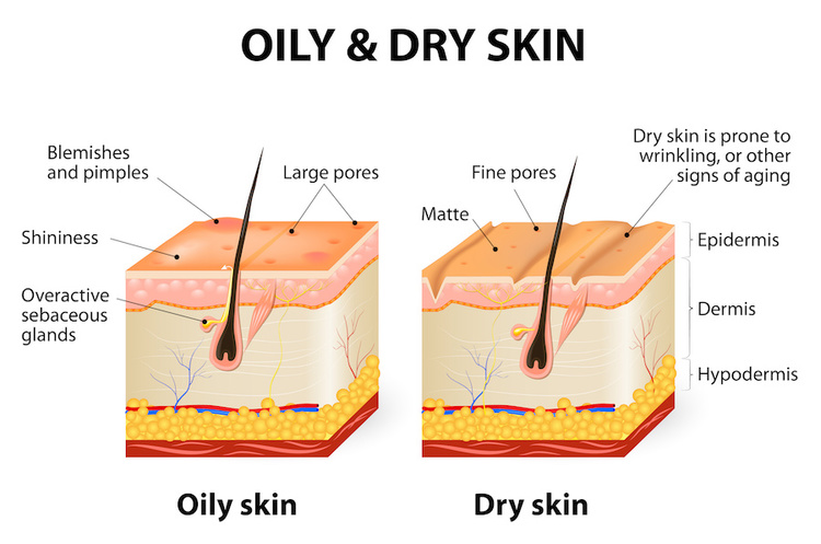 Oily vs. dry skin medical diagram