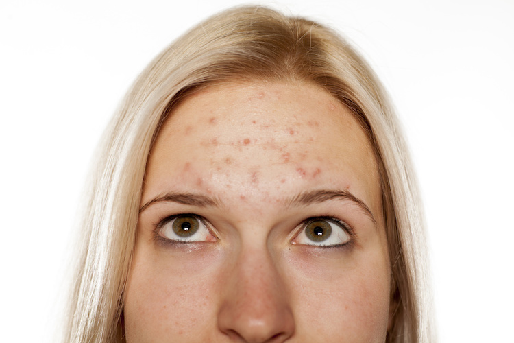 Up close look at woman with acne-prone skin and breakouts