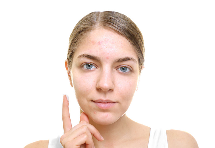 Woman about to apply toothpaste to pimples as a spot treatment