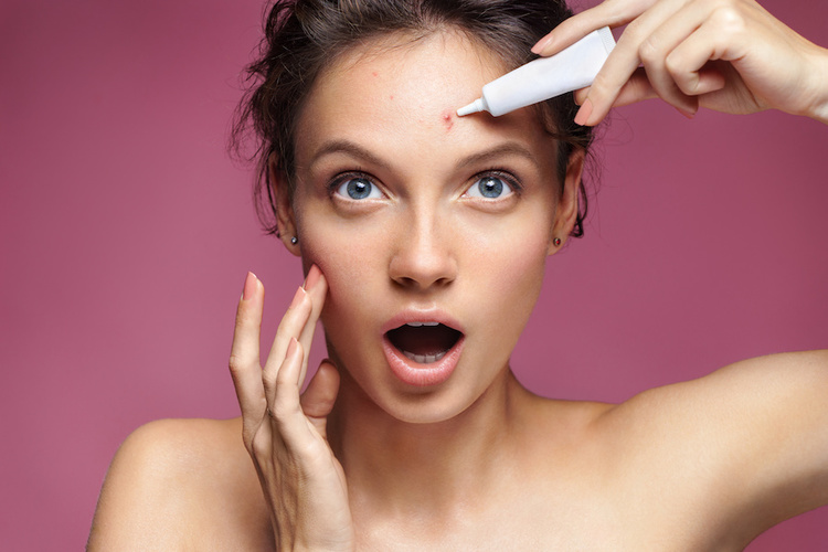 Woman nervously applying pimple to acne pimples