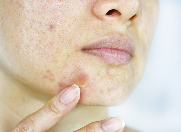 Woman applying a pimple patch as a spot treatment
