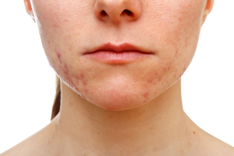 Woman with adult hormonal acne