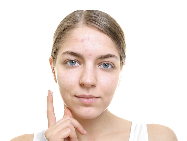 Woman about to apply oil-free moisturizer to face