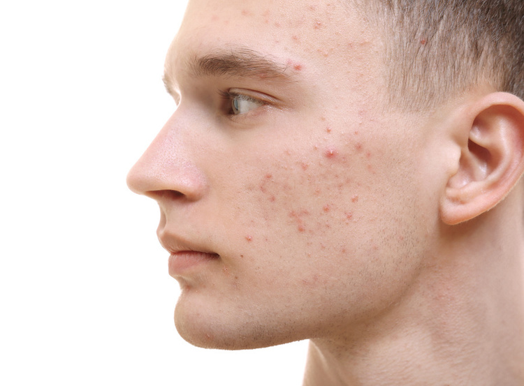 Teenage male expereincing acne purge