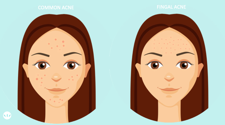 Location of fungal acne on the face compared to common acne