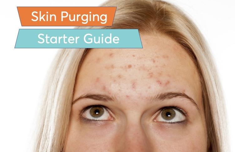 acne purging