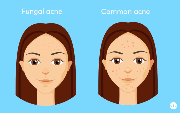 Fungal acne vs common acne
