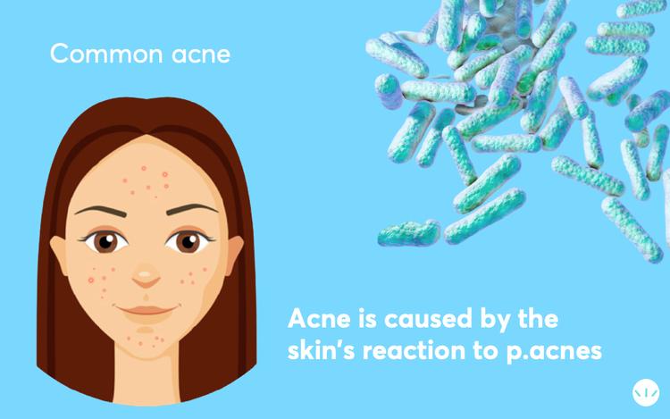 p acnes causes acne