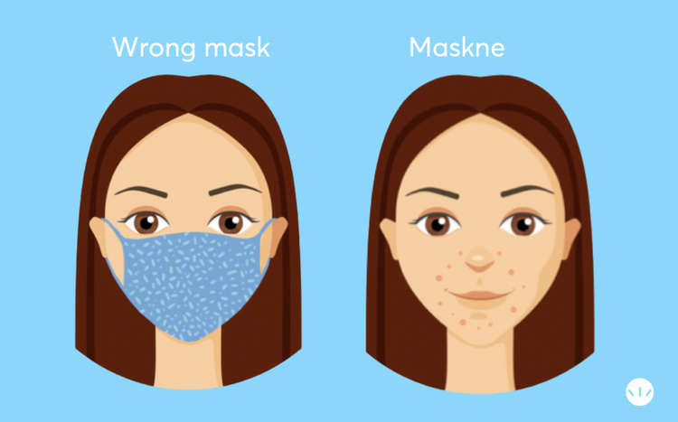 illustration of the location of maskne on the face
