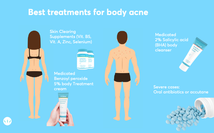 Best treatments for body acne infographic