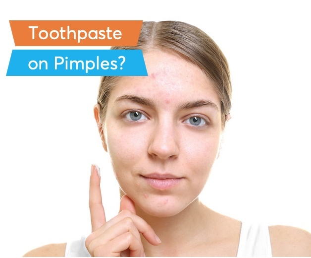a women applying toothpaste on her pimples