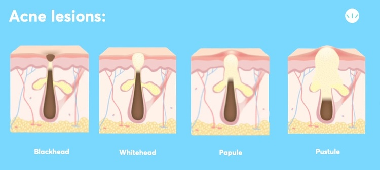 different type of acne lesions infographic