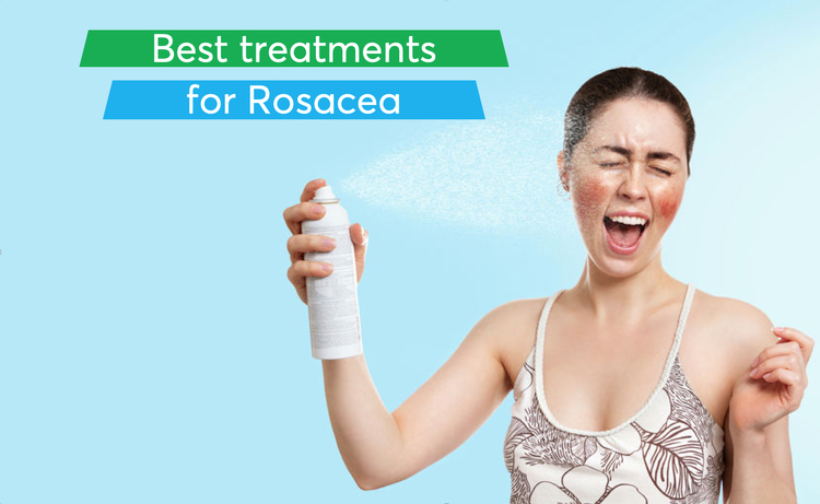 What are the best treatments for  rosacea