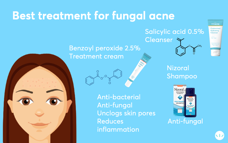 Best treeatmnt for fungal acne infographic